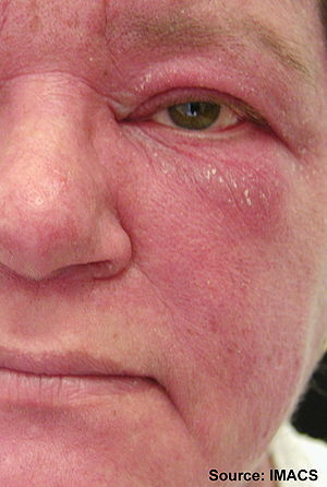 Malar and facial erythema. Striking malar and ...